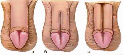 Различные формы эписпадии