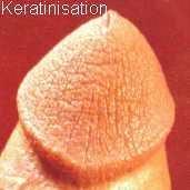 Гиперкератоз головки обрезанного полового члена