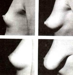 Различные формы женской груди