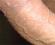 Волосяные луковицы на коже полового члена