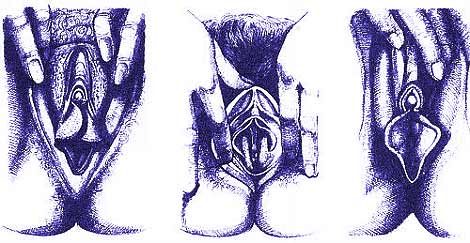 Варианты внешнего вида половых органов женщины