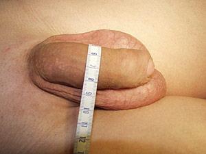 Измерение окружности полового члена