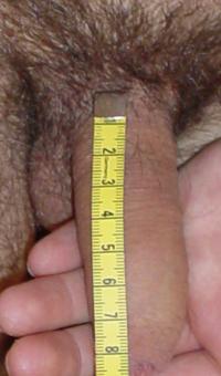 Измерение размеров полового члена в состоянии